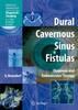 Dural Cavernous Sinus Fistulas
